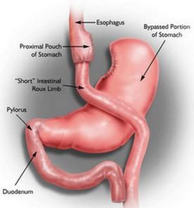 Roux en y gastric bypass anatomy